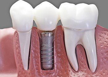 Titanium, often used for dental implants, can still contain heavy metals