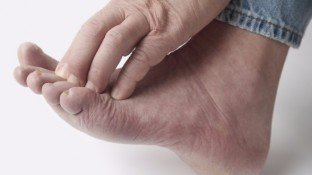 Diabetic Peripheral Neuropathy: 3 Protocols to Prevent & Reverse Nerve Damage
