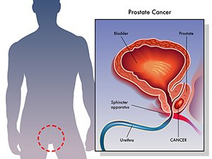 Prostate cancer develops when gland cells in the prostate begin to grow uncontrollably
