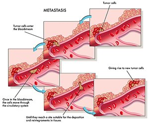 Metastatic Prostate Cancer