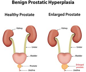 An enlarged prostate often leads to difficulty with urination