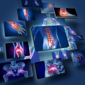 """While people generally recognize inflammation in the joints, it can be a """"silent trigger"""" in other parts of the body"""