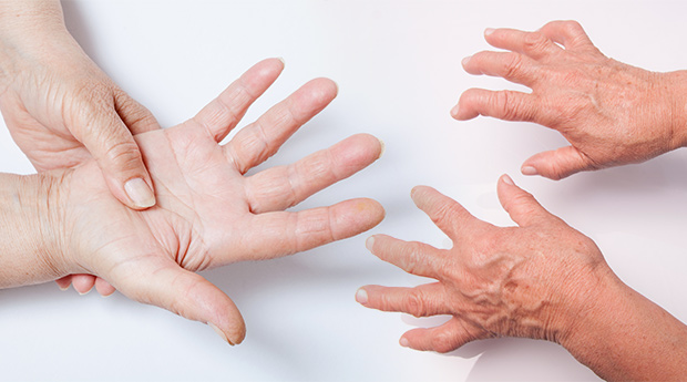 Rheumatoid Arthritis and Cancer: What's the Connection?
