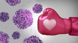 Tamoxifen Alternatives for Estrogen Dominant Breast Cancer
