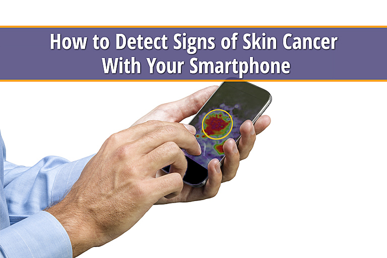 Can Your Smartphone Detect Signs Of Skin Cancer