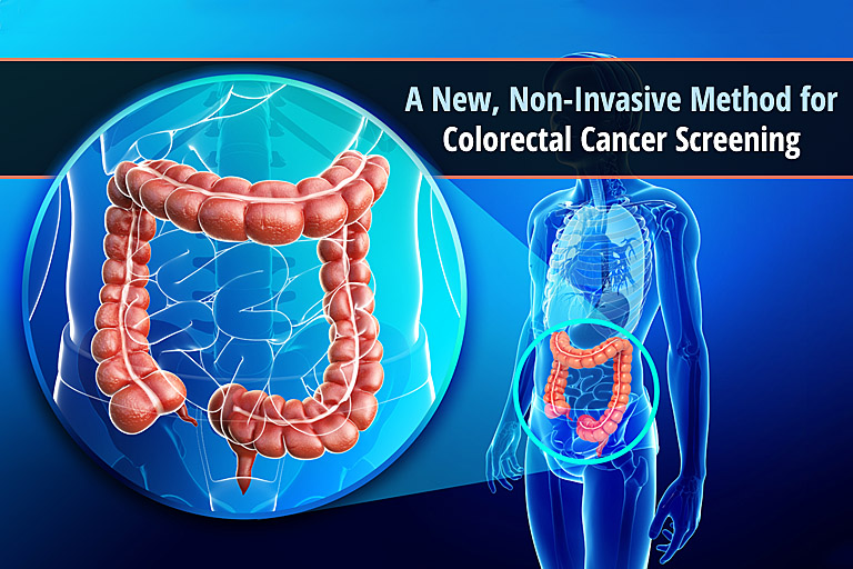 A New Non Invasive Method For Colorectal Cancer Screening