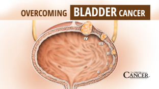 Overcoming Bladder Cancer