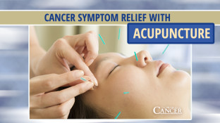 Cancer Symptom Relief with Acupuncture