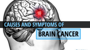 Causes and Symptoms of Brain Cancer