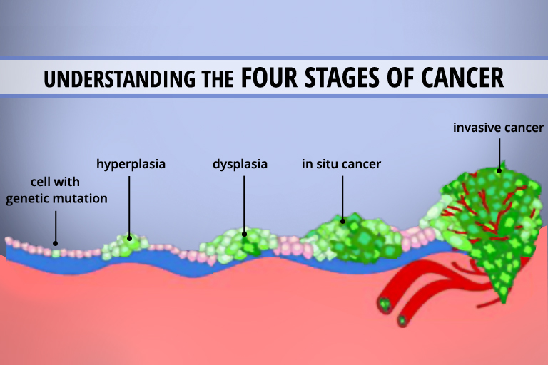 Understanding The 4 Stages Of Cancer