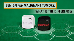 Benign and Malignant Tumors: What is the Difference?