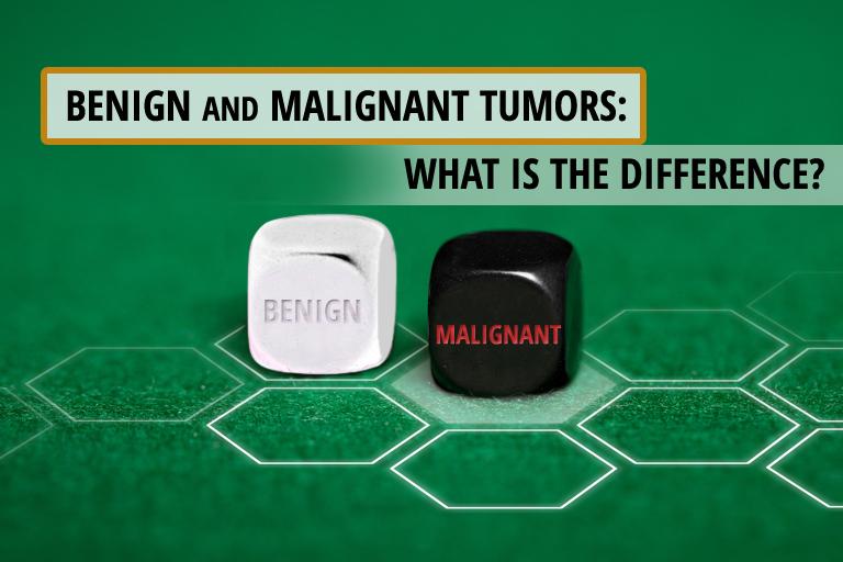 benign vs malignant tumor