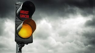 7 Rarely Discussed Early Signs of Breast Cancer