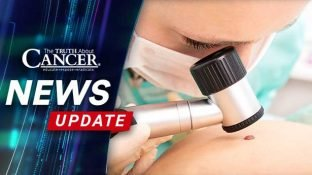 New Treatments Offer Renewed Hope for Melanoma Patients