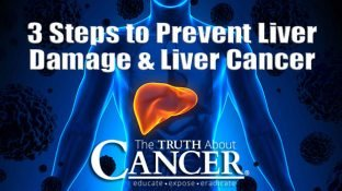 3 Steps to Prevent Liver Damage and Cancer of the Liver