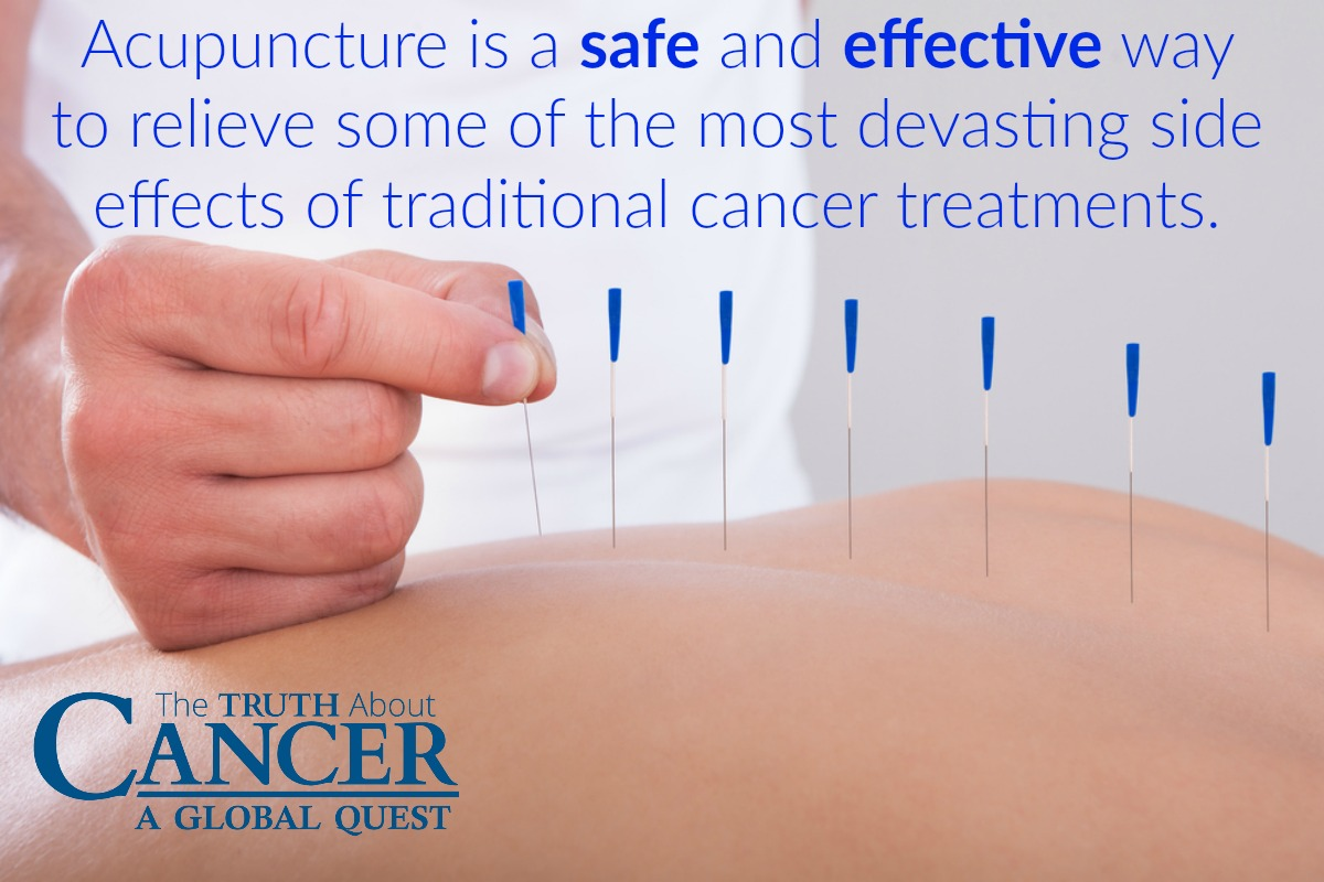 Acupuncture is a safe and effective treatment for cancer patients.