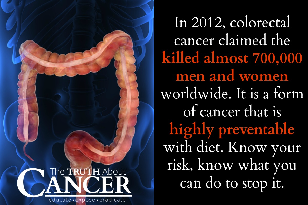 You need to know the facts about colorectal cancer